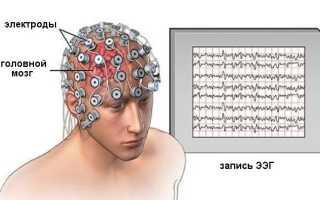 Интерпретация электроэнцефалограммы
