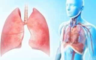 Как лечить воспаление легких в домашних условиях — правила и рекомендации врачей