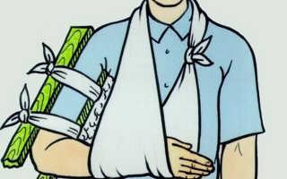 Первая помощь при переломе закрытом руки