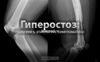 Поротический гиперостоз