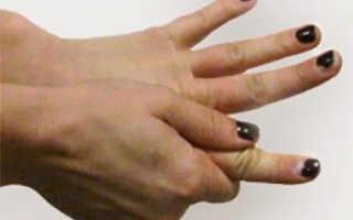 Болит сустав указательного пальца