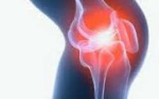 Коленный артрит симптомы